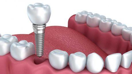 هزینه دندانپزشکی ایمپلنت