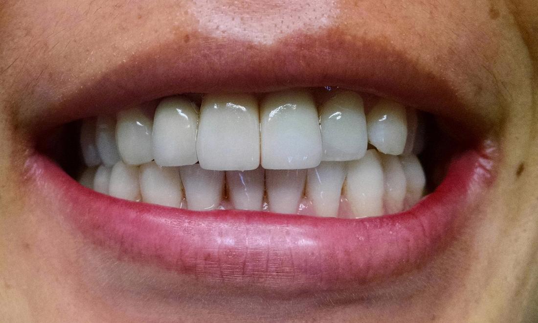 ایمپلنت دندان با لیزر