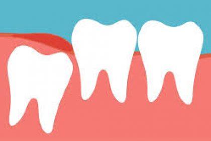 کشیدن دندان عقل بالا