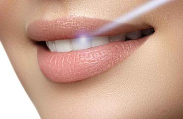 سفید کردن دندان با لیزر