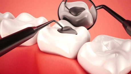 پر کردن دندان