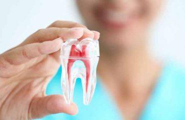 عفونت در دندان عصب کشی شده؟