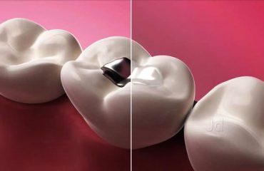 پر کردن دندان با مواد سیاه و سفید