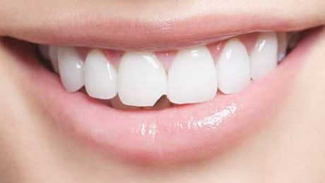 کامپوزیت دندان های جلو