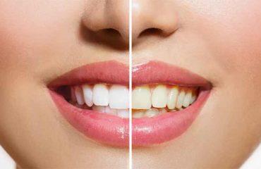 تغییر رنگ کامپوزیت دندان