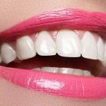 رژیم غذایی بعد از کامپوزیت دندان